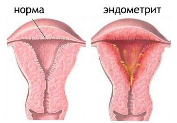 sperma-s-vkrapleniyami
