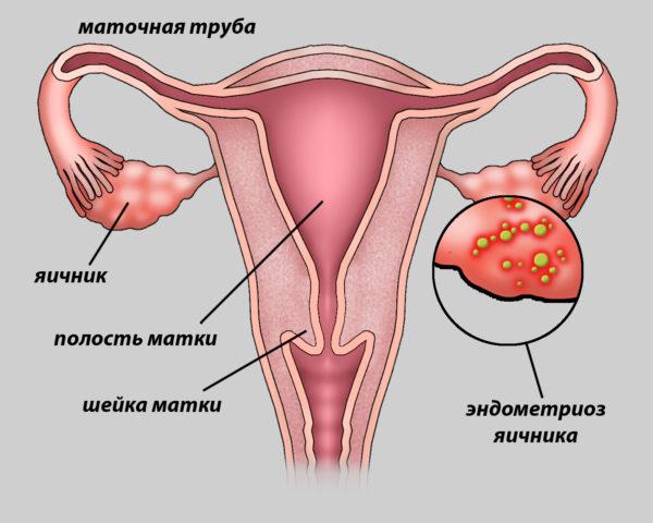 Как лечит в домашних условиях эндометриоз