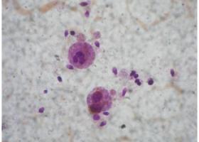Лейкоциты в спермограмме - ЭКО-блог