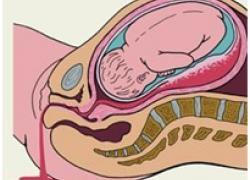 Изображение №3: Месячные при беременности - ЭКО-блог