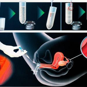 Изображение №2: Метод вспомогательной репродуктивной технологии при ЭКО - ЭКО-блог