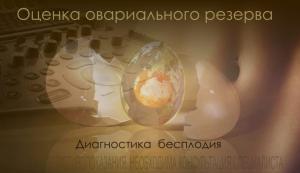 Изображение №1: Повышенный или пониженный антимюллеров гормон - ЭКО-блог