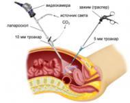 Изображение №1: Беременность после лапароскопии маточных труб - ЭКО-блог