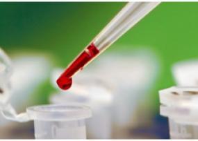 Повышенный пролактин у женщин - последствия и причины - ЭКО-блог