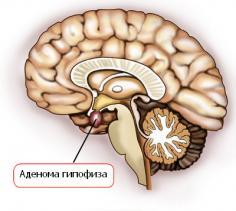 Изображение №2: Симптомы повышенного пролактина у женщин - ЭКО-блог