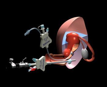 Изображение №2: Лапароскопия маточных труб: послеоперационный период - ЭКО-блог