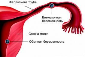 Изображение №2: Удаление матки или маточной трубы - ЭКО-блог