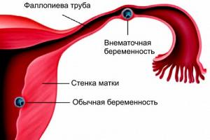 Изображение №0: Удаление маточной трубы: чем опасно? - ЭКО-блог
