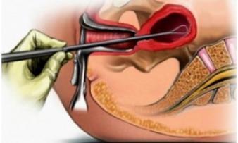 Изображение №1: Чистка матки при эндометриозе - ЭКО-блог