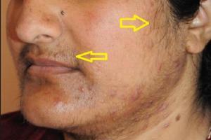 Изображение №2: Норма тестостерона у женщин - ЭКО-блог
