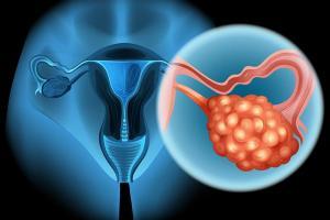Изображение №1: Синдром гиперстимуляции яичников при ЭКО и беременность - ЭКО-блог