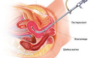 Изображение №1: Что такое гистероскопия матки, для чего и как проводится - ЭКО-блог
