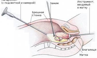 Изображение №3: Лапароскопия – современная и эффективная методика - ЭКО-блог