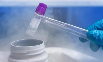 Изображение №3: Требования к донорской сперме - ЭКО-блог