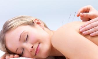 Изображение №1: Иглоукалывание при бесплодии у женщин - ЭКО-блог