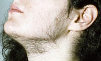 Изображение №2: Овуляторное бесплодие - ЭКО-блог