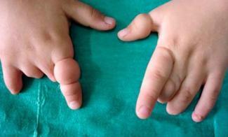 Изображение №4: Маловодие при беременности - причины - ЭКО-блог