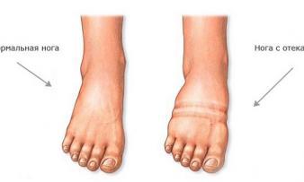 Изображение №1: Отеки ног при беременности - ЭКО-блог