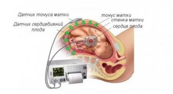 Изображение №2: Гипертонус матки при беременности - ЭКО-блог