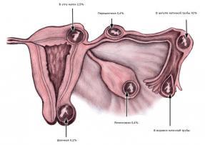 Изображение №3: Тянет низ живота при беременности на ранних сроках - ЭКО-блог