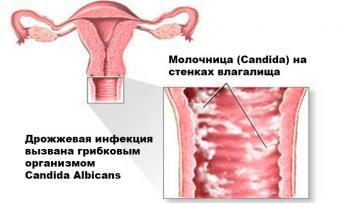 Изображение №2: Молочница при беременности - ЭКО-блог