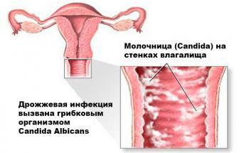 Изображение №1: Чем лечить молочницу при беременности - ЭКО-блог