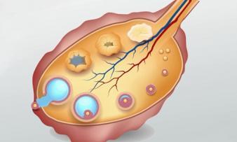 Изображение №1: Диагностика овариального резерва яичников: EFORT-тест - ЭКО-блог