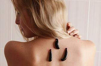 Изображение №1: Гирудотерапия при бесплодии - ЭКО-блог