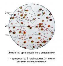 Изображение №1: Повышенные лейкоциты при беременности - ЭКО-блог