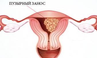 Изображение №3: Может ли тест на беременность быть положительным если беременности нет - ЭКО-блог