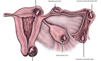 Изображение №2: Коричневые выделения при беременности на ранних сроках - ЭКО-блог