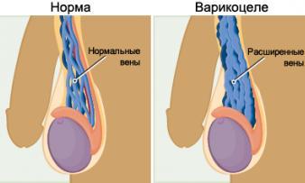 Изображение №1: Влияет ли варикоцеле на бесплодие - ЭКО-блог
