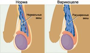 Изображение №0: Влияет ли варикоцеле на бесплодие - ЭКО-блог
