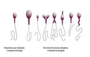 Изображение №1: Причины появления и лечение аномальных сперматозоидов - ЭКО-блог