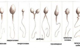 Изображение №1: Лечение бесплодия: патологии спермы - ЭКО-блог