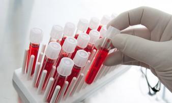 Изображение №0: Совместимость групп крови для зачатия - ЭКО-блог