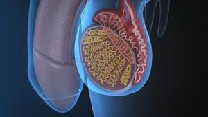Изображение №1: Лапароскопия при варикоцеле – целесообразность метода и его эффективность - ЭКО-блог