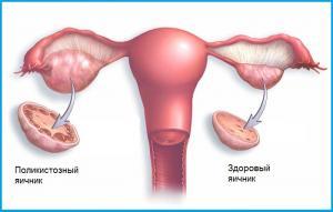 Изображение №1: Поликистоз яичников (синдром Штейна Левенталя) - ЭКО-блог