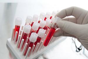 Изображение №1: Влияние группы крови и резус-фактора на возможность зачатия и вынашивания - ЭКО-блог