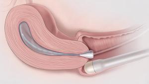 Изображение №1: Гистеросальпингография (ГСГ) маточных труб - что это такое в гинекологии - ЭКО-блог