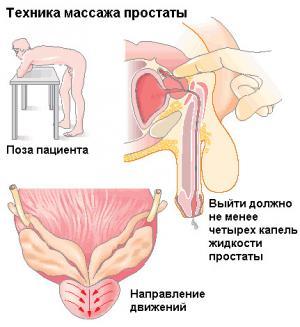 Изображение №2: Мануальный массаж простаты в лечении простатита - ЭКО-блог