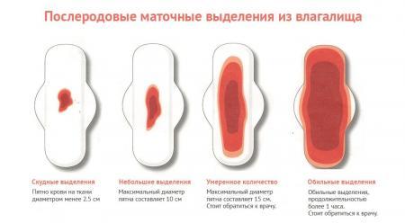 Изображение №2: Кровотечение после родов - ЭКО-блог