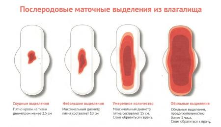 Изображение №1: Кровотечение после родов - ЭКО-блог