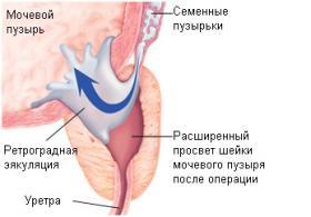 Изображение 3: Ретроградная эякуляция - ЭКО-блог