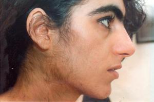 Изображение №3: 17-ОН прогестерон повышен у женщины - ЭКО-блог