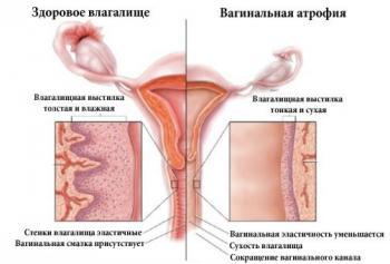 Изображение №1: Атрофический вагинит - проблема не только женщин в менопаузе - ЭКО-блог