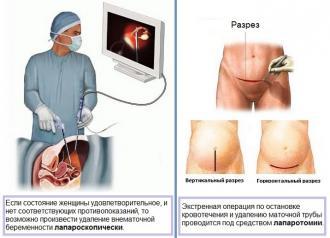 Изображение №4: Признаки внематочной беременности на ранних сроках - ЭКО-блог