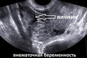 Изображение №2: Признаки внематочной беременности на ранних сроках - ЭКО-блог