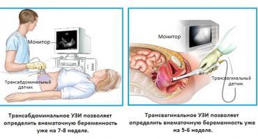 Изображение №1: Признаки внематочной беременности на ранних сроках - ЭКО-блог