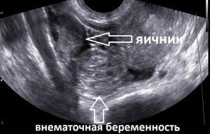 Изображение №3: Признаки внематочной беременности на ранних сроках - ЭКО-блог